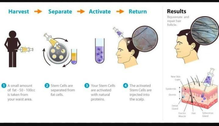 Swiss Medica Review: Stem Cell Therapy in 2019 | The
