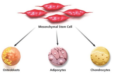 Stem Cells Therapy for Diabetes type 2: How it can be treated by Swiss Medica