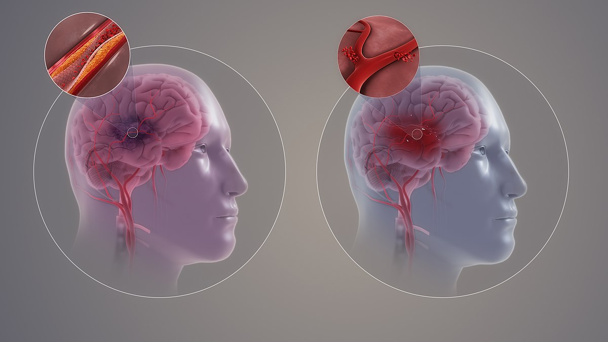 Stroke Due to Hypertension